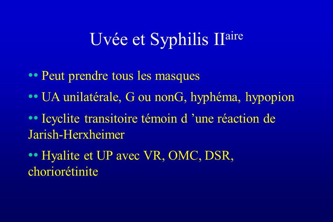 Uvée et Syphilis II aire Peut prendre tous les masques UA unilatérale, G ou nonG, hyphéma, hypopion Icyclite transitoire témoin d une réaction de Jari