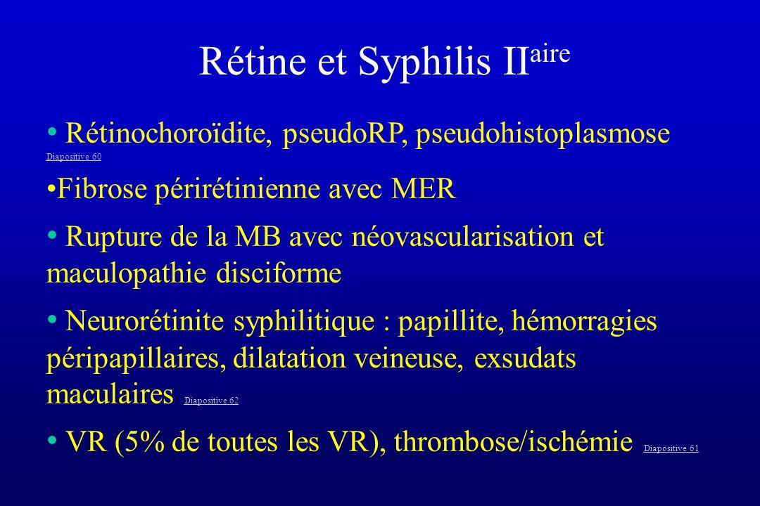 Rétine et Syphilis II aire Rétinochoroïdite, pseudoRP, pseudohistoplasmose Diapositive 60 Diapositive 60 Fibrose périrétinienne avec MER Rupture de la