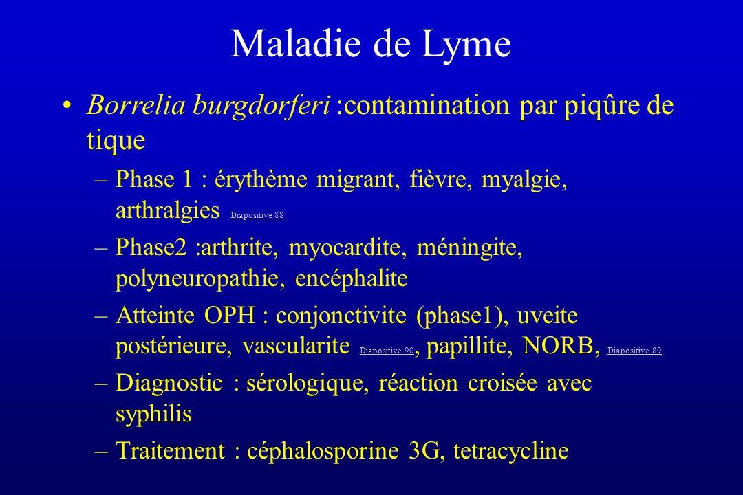 Maladie de Lyme Borrelia burgdorferi :contamination par piqûre de tique –Phase 1 : érythème migrant, fièvre, myalgie, arthralgies Diapositive 88 Diapo