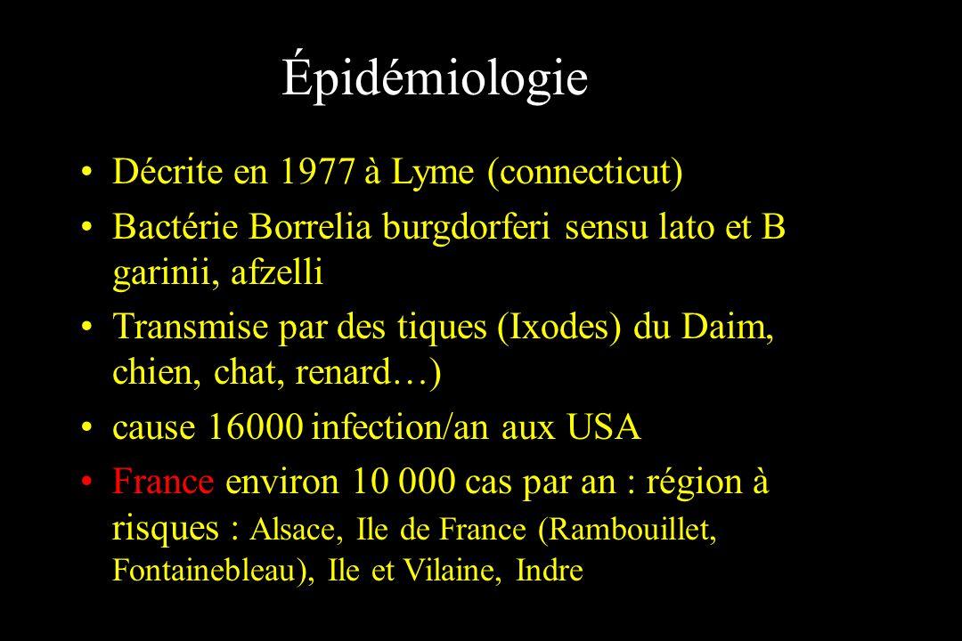 Épidémiologie Décrite en 1977 à Lyme (connecticut) Bactérie Borrelia burgdorferi sensu lato et B garinii, afzelli Transmise par des tiques (Ixodes) du