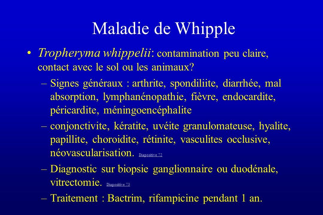 Maladie de Whipple Tropheryma whippelii: contamination peu claire, contact avec le sol ou les animaux? –Signes généraux : arthrite, spondiliite, diarr