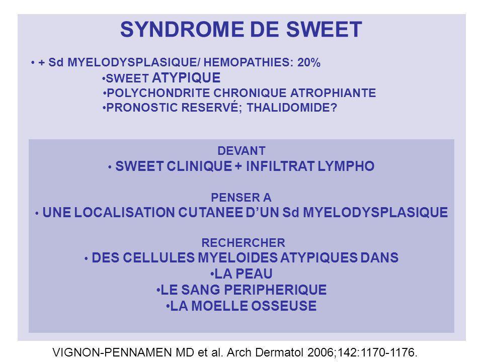 SYNDROME DE SWEET + Sd MYELODYSPLASIQUE/ HEMOPATHIES: 20% SWEET ATYPIQUE POLYCHONDRITE CHRONIQUE ATROPHIANTE PRONOSTIC RESERVÉ; THALIDOMIDE? DEVANT SW
