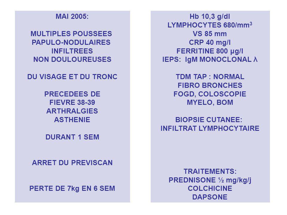 MAI 2005: MULTIPLES POUSSEES PAPULO-NODULAIRES INFILTREES NON DOULOUREUSES DU VISAGE ET DU TRONC PRECEDEES DE FIEVRE 38-39 ARTHRALGIES ASTHENIE DURANT