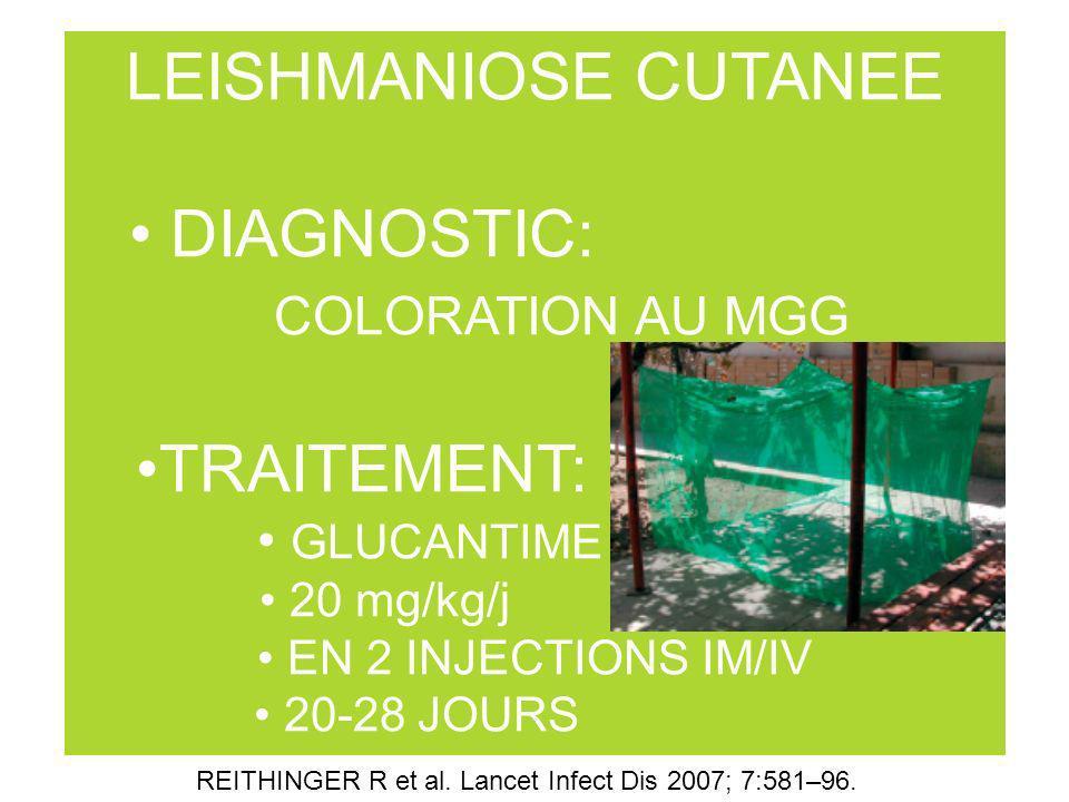 LEISHMANIOSE CUTANEE DIAGNOSTIC: COLORATION AU MGG TRAITEMENT: GLUCANTIME 20 mg/kg/j EN 2 INJECTIONS IM/IV 20-28 JOURS REITHINGER R et al. Lancet Infe