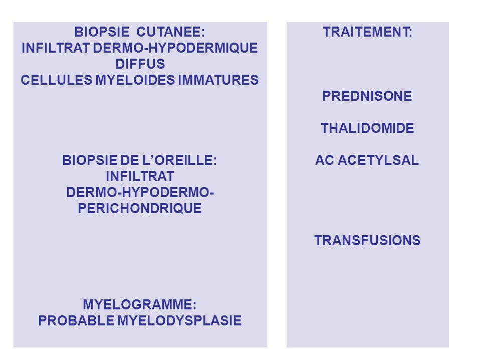 BIOPSIE CUTANEE: INFILTRAT DERMO-HYPODERMIQUE DIFFUS CELLULES MYELOIDES IMMATURES BIOPSIE DE LOREILLE: INFILTRAT DERMO-HYPODERMO- PERICHONDRIQUE MYELO