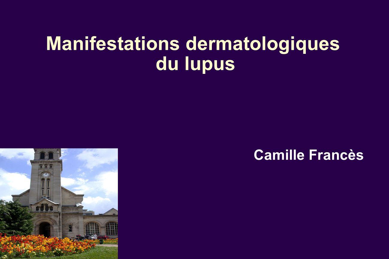 Manifestations dermatologiques du lupus Camille Francès