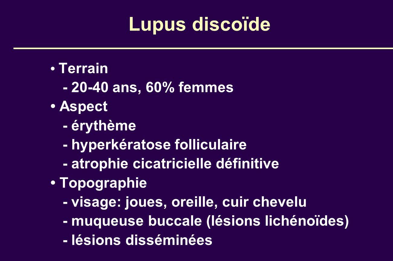 Lupus discoïde Terrain - 20-40 ans, 60% femmes Aspect - érythème - hyperkératose folliculaire - atrophie cicatricielle définitive Topographie - visage