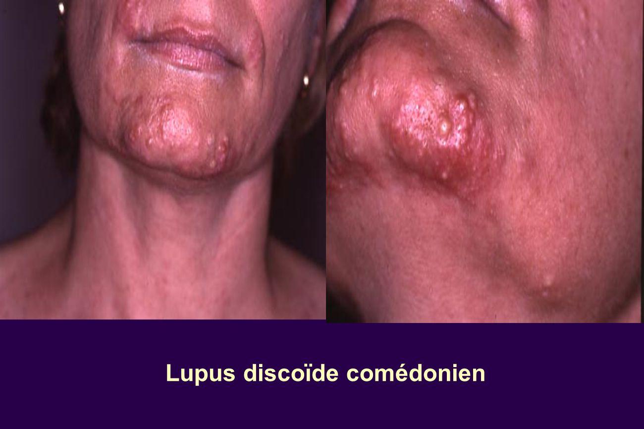 Lupus discoïde comédonien