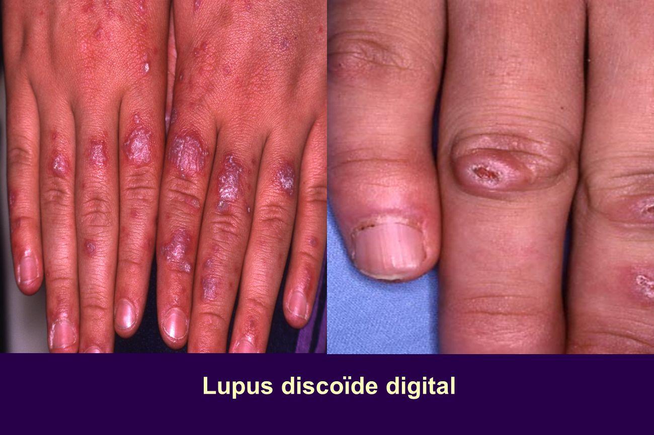 Lupus discoïde acralLupus discoïde acral Lupus discoïde digital