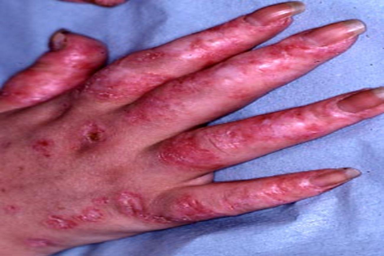 Lupus discoïde acralLupus discoïde acral