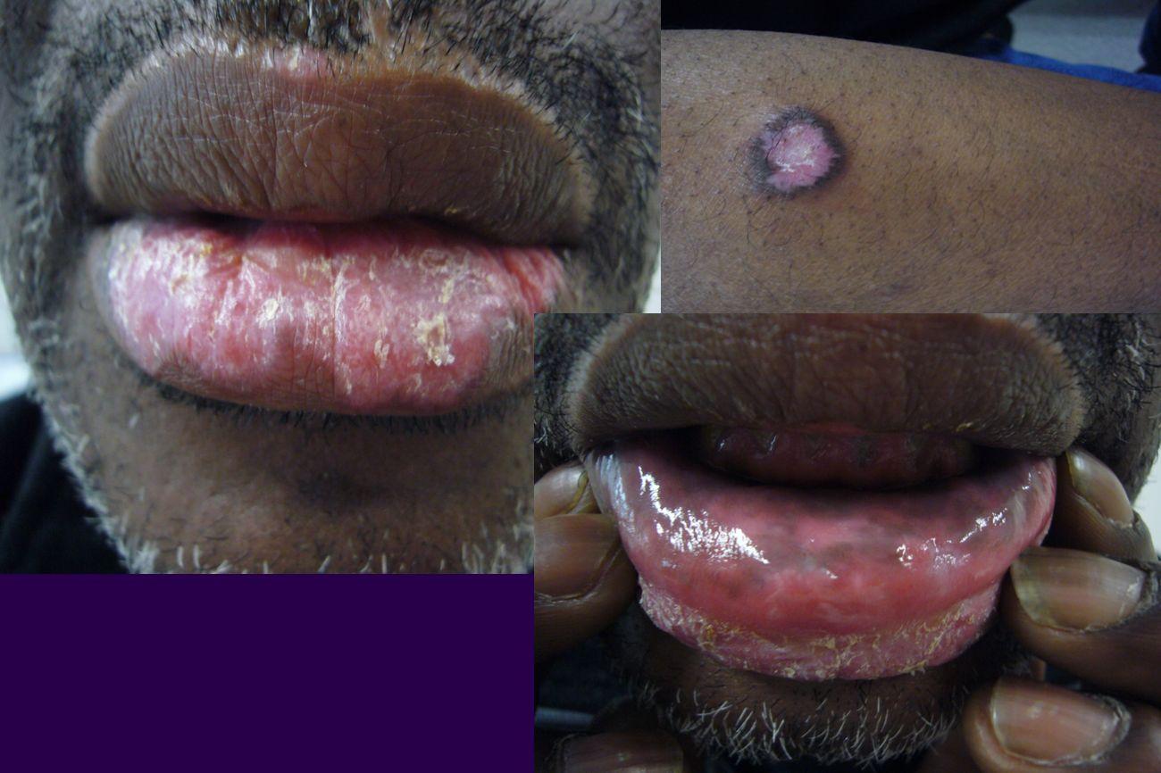 Lupus discoïde lichénoïde buccalLupus discoïde lichénoïde buccal