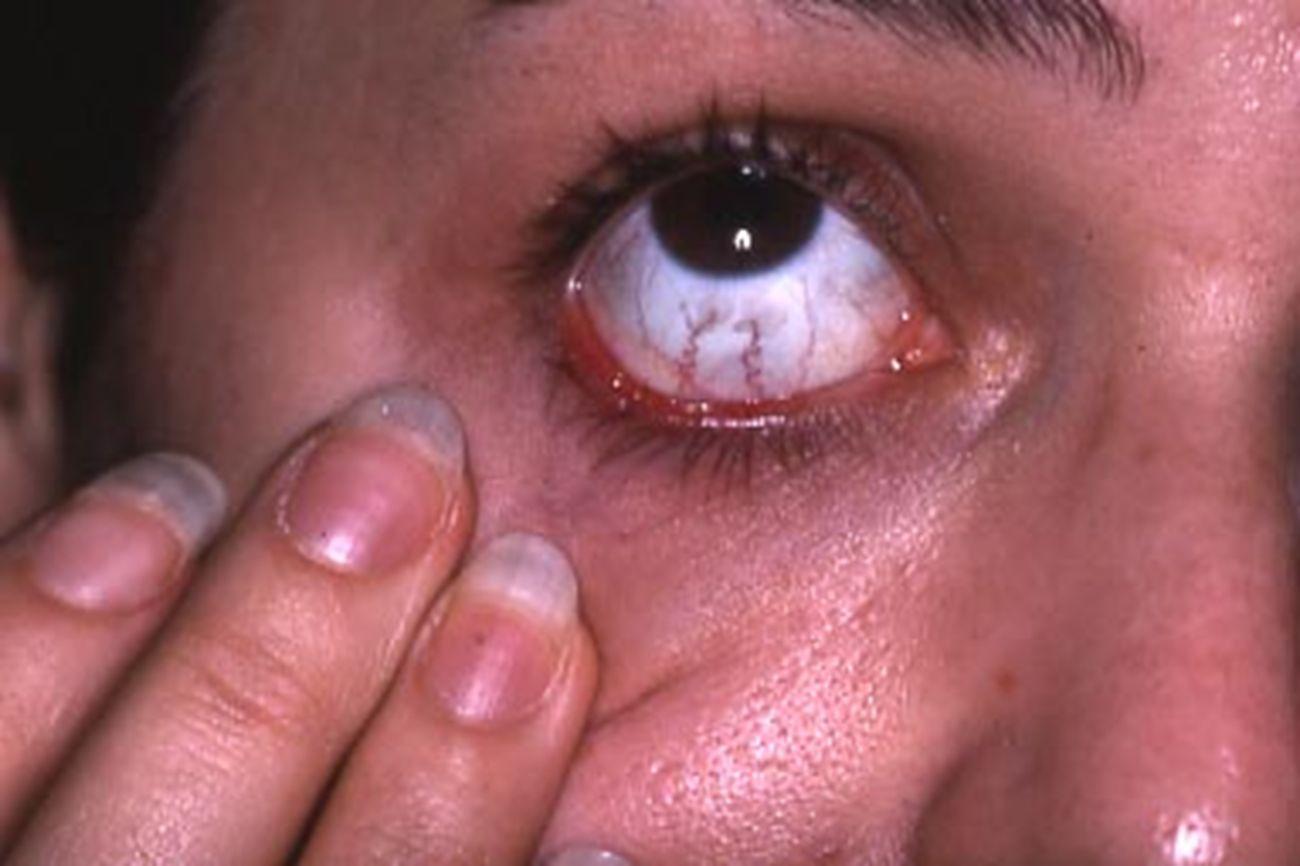 Lupus discoïde conjonctivalLupus discoïde conjonctival