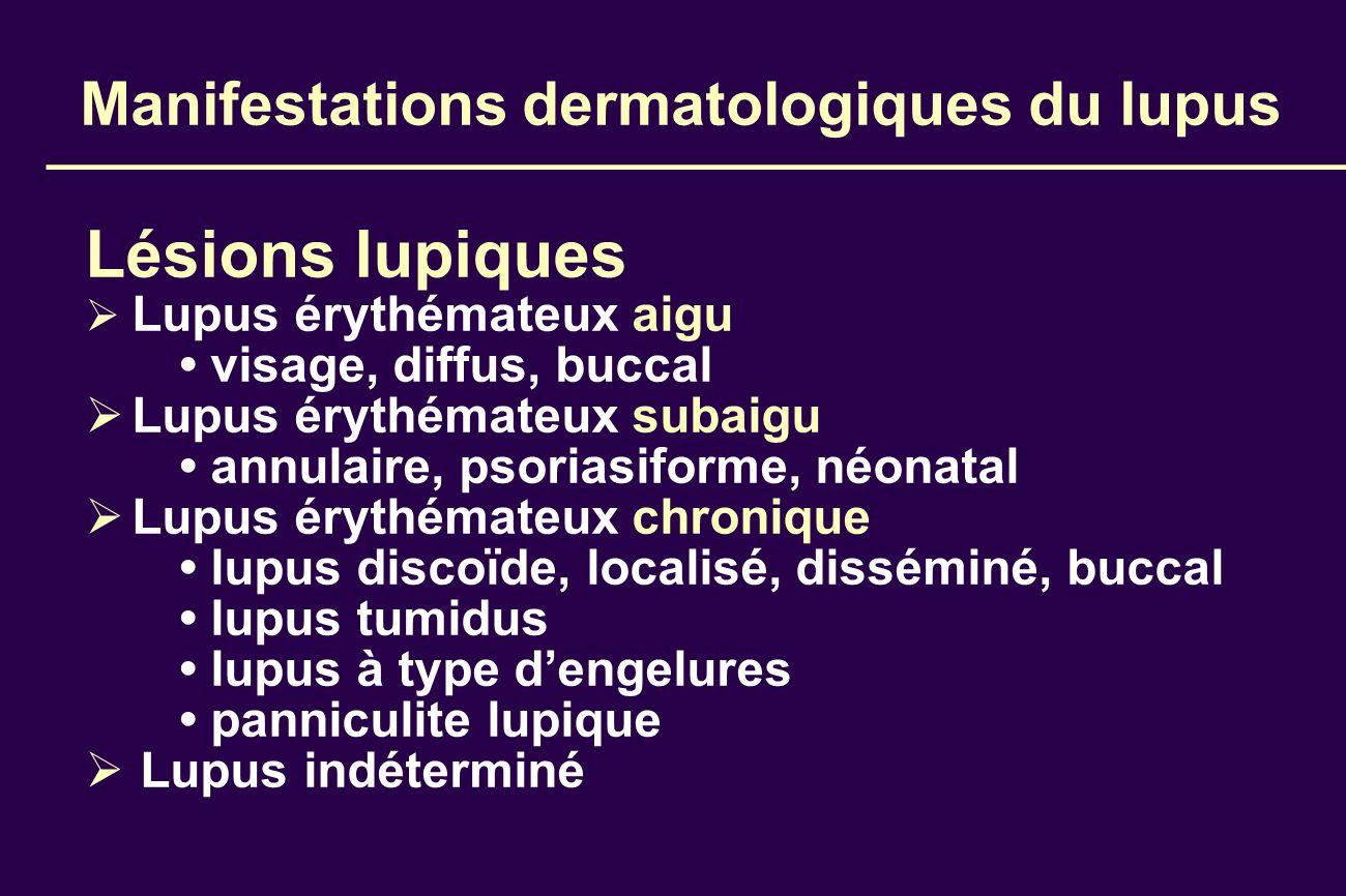 Manifestations dermatologiques du lupus Lésions lupiques Lupus érythémateux aigu visage, diffus, buccal Lupus érythémateux subaigu annulaire, psoriasi