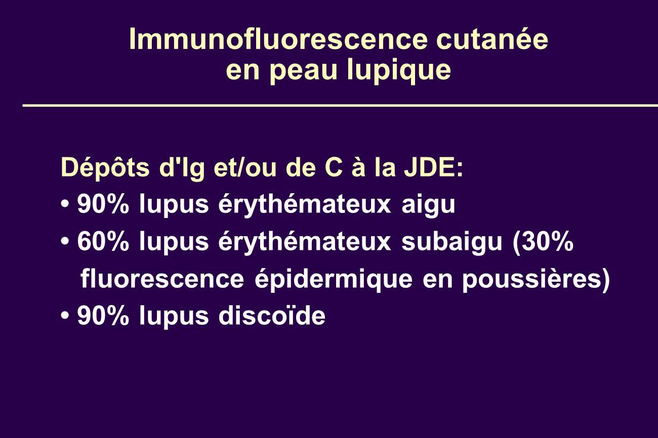 Immunofluorescence cutanée en peau lupique Dépôts d'Ig et/ou de C à la JDE: 90% lupus érythémateux aigu 60% lupus érythémateux subaigu (30% fluorescen