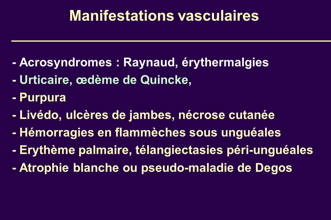 Manifestations vasculaires - Acrosyndromes : Raynaud, érythermalgies - Urticaire, œdème de Quincke, - Purpura - Livédo, ulcères de jambes, nécrose cut