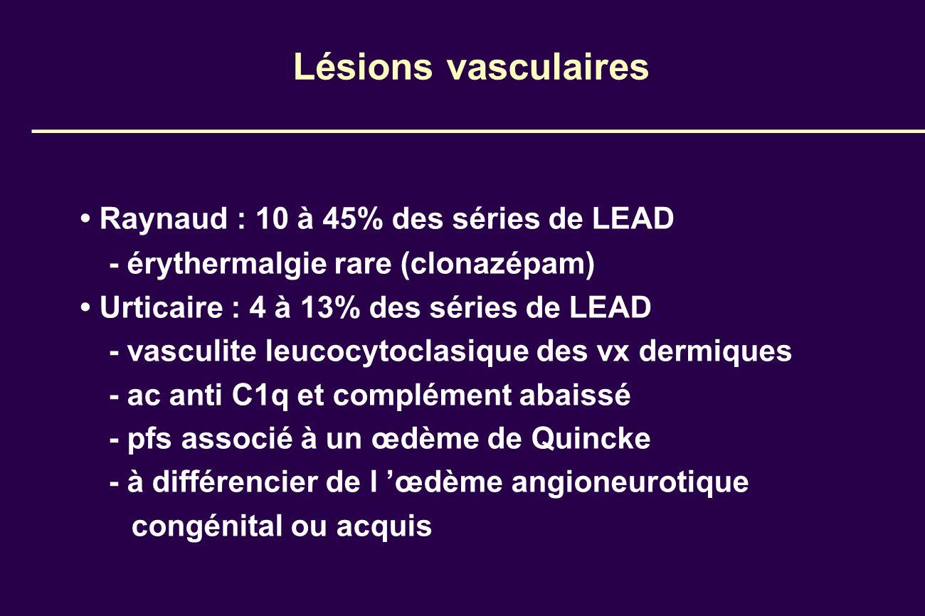 Lésions vasculaires Raynaud : 10 à 45% des séries de LEAD - érythermalgie rare (clonazépam) Urticaire : 4 à 13% des séries de LEAD - vasculite leucocy