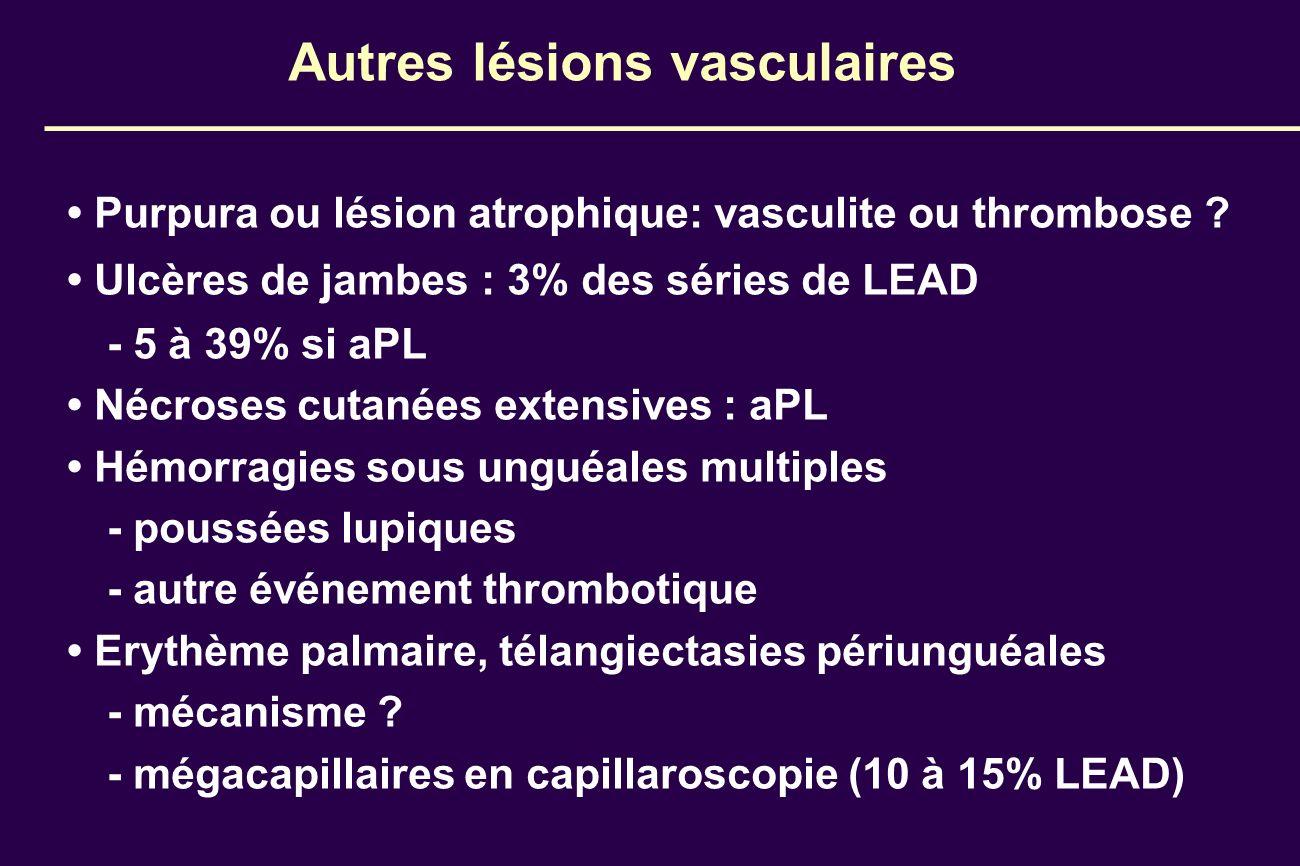 Autres lésions vasculaires Purpura ou lésion atrophique: vasculite ou thrombose ? Ulcères de jambes : 3% des séries de LEAD - 5 à 39% si aPL Nécroses