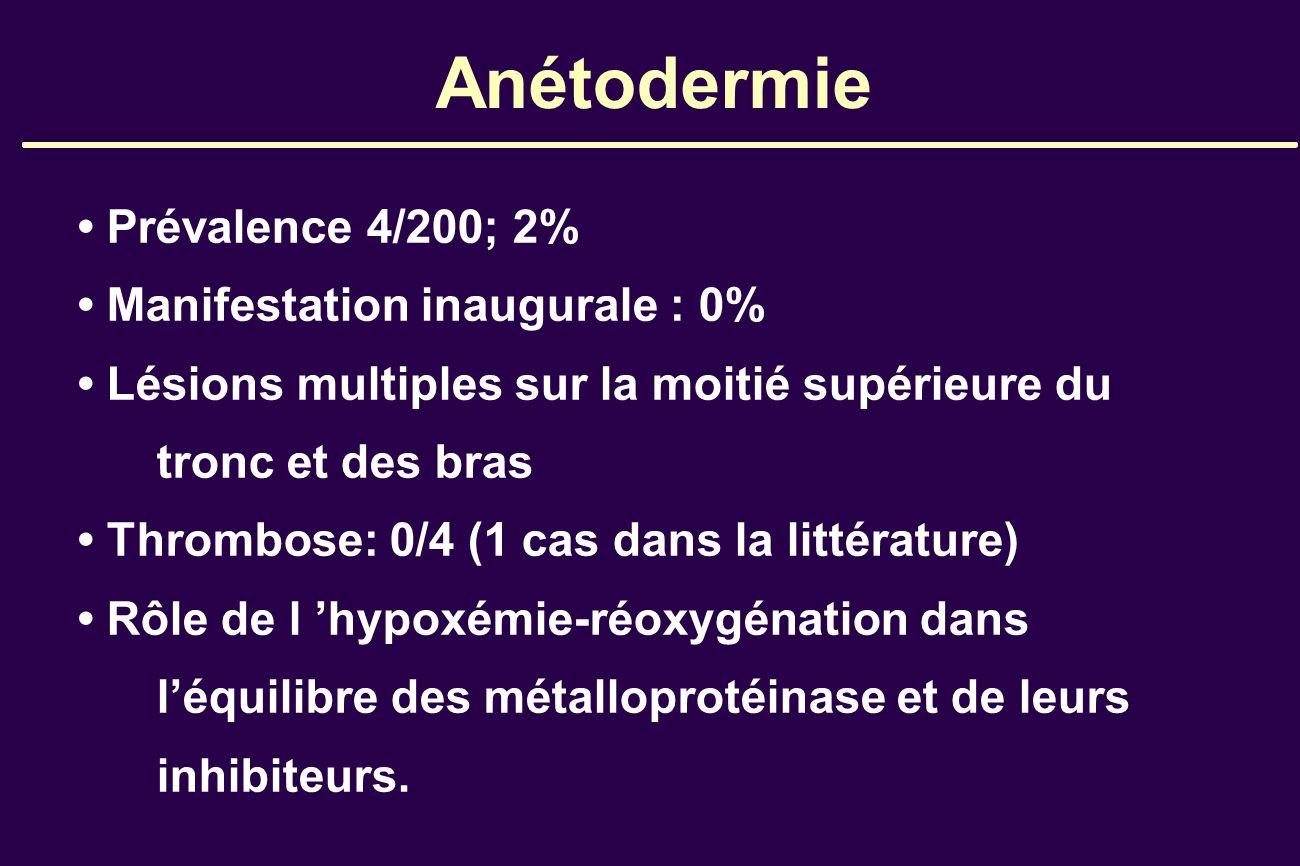 Anétodermie Prévalence 4/200; 2% Manifestation inaugurale : 0% Lésions multiples sur la moitié supérieure du tronc et des bras Thrombose: 0/4 (1 cas d