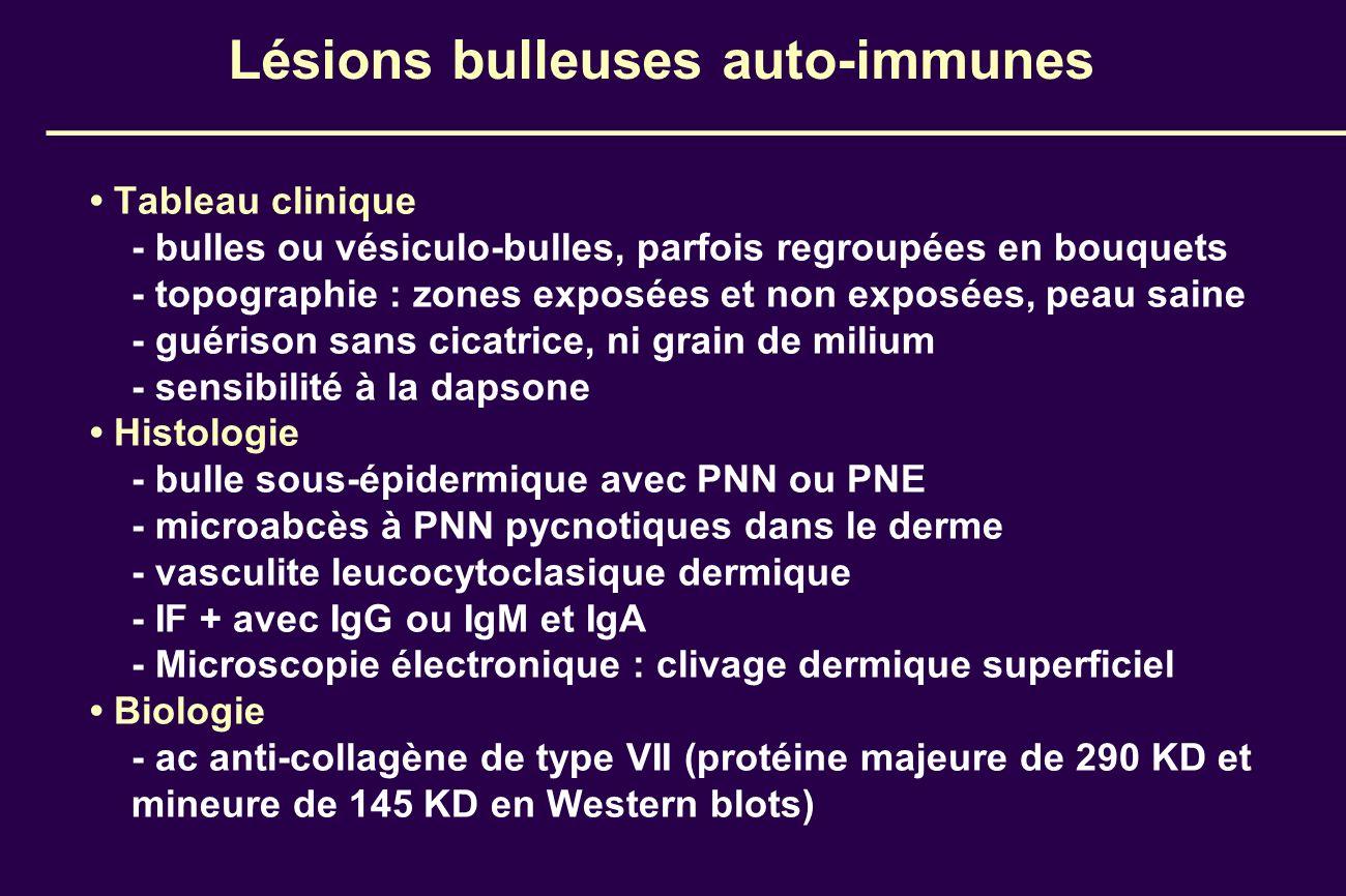 Lésions bulleuses auto-immunes Tableau clinique - bulles ou vésiculo-bulles, parfois regroupées en bouquets - topographie : zones exposées et non expo