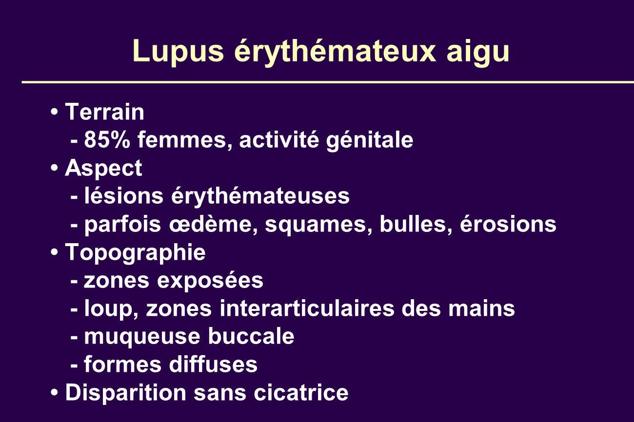 Lupus érythémateux aigu Terrain - 85% femmes, activité génitale Aspect - lésions érythémateuses - parfois œdème, squames, bulles, érosions Topographie