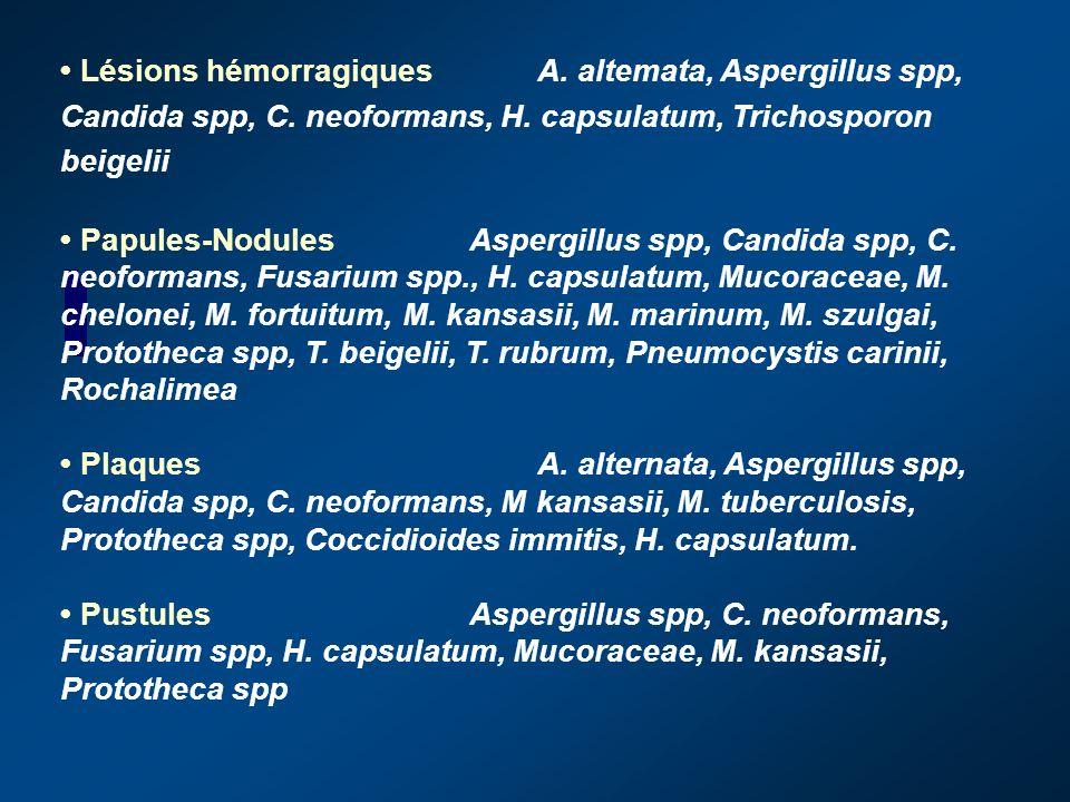 AbcèsAspergillus spp, Chaetoconidium, Cryptococcus neoformans, Fusarium solani, Mucoraceae, Mycobacterium avium-int-racellulare, M. fortuitum, M. kans