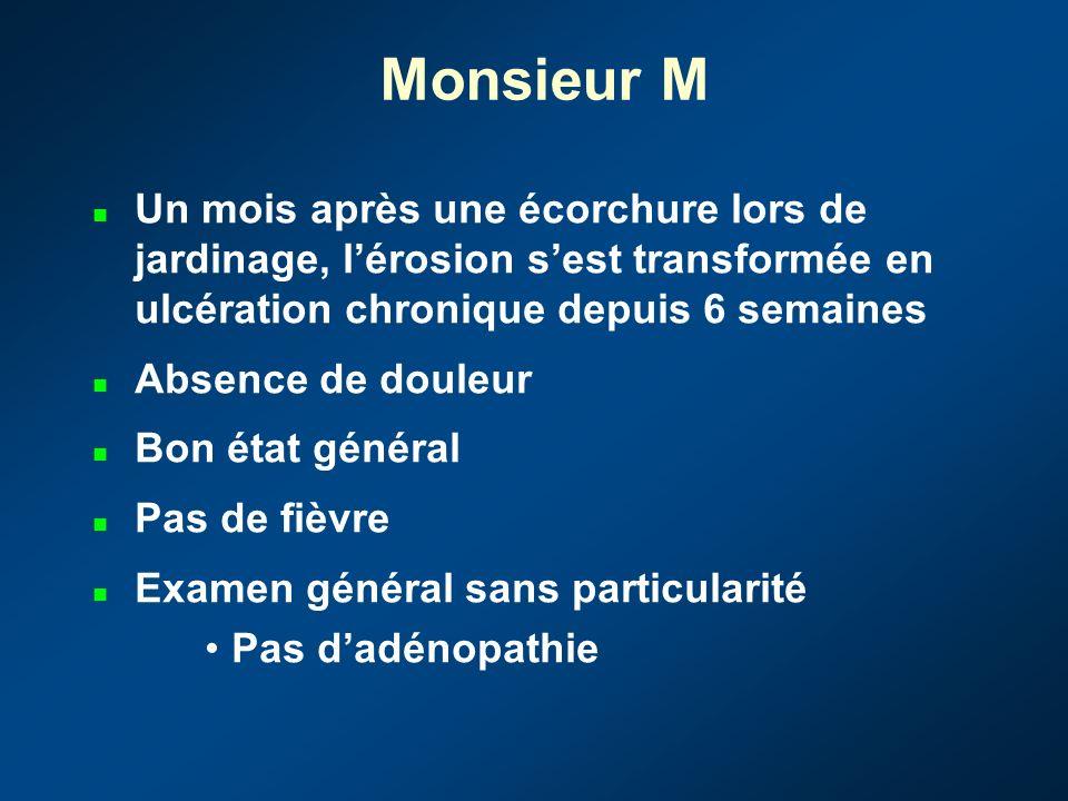 Monsieur M 65 ans Transplantation cardiaque pour cardiomyopathie ischémique en 2000 Rejet précoce à 1 mois jugulé par un bolus de 1g de Solumédrol Tra