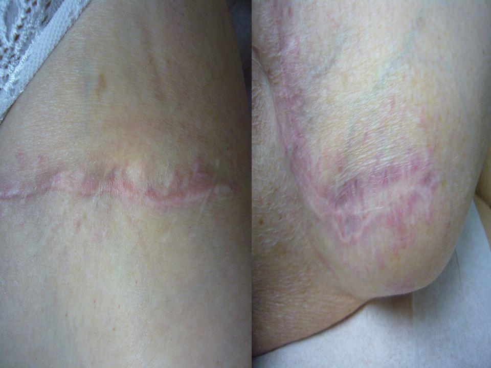 Madame T (suite) 12/2004 : Transplantation hépatique pour cirrhose avec varices oesophagiennes Pas de rejet Traitement dentretien : Prograf® 1,5 mg/j,