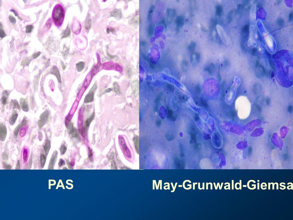 PAS May-Grunwald-Giemsa