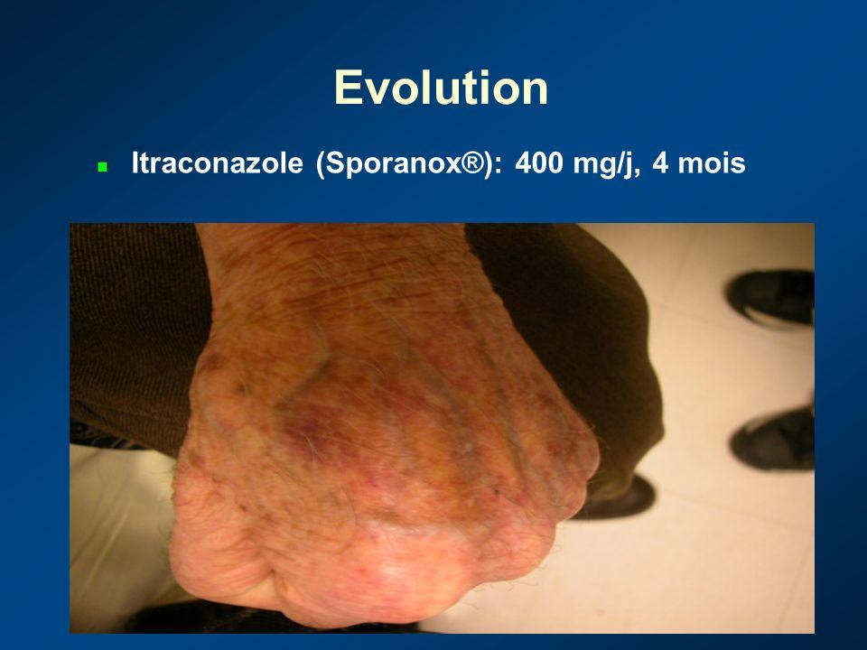 Infections opportunistes atteinte cutanée primitive ou secondaire souvent peu évocatrice cliniquement biopsie systématique de toute lésion non étiquetée avec examen histologique et cultures multiples