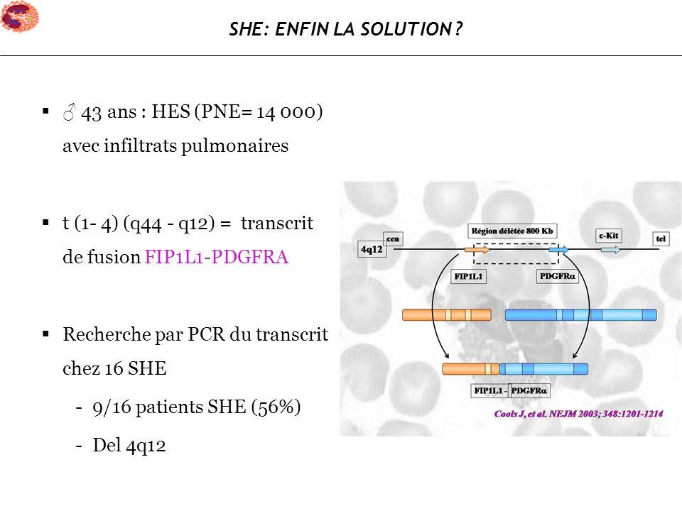 43 ans : HES (PNE= 14 000) avec infiltrats pulmonaires t (1- 4) (q44 - q12) = transcrit de fusion FIP1L1-PDGFRA Recherche par PCR du transcrit chez 16