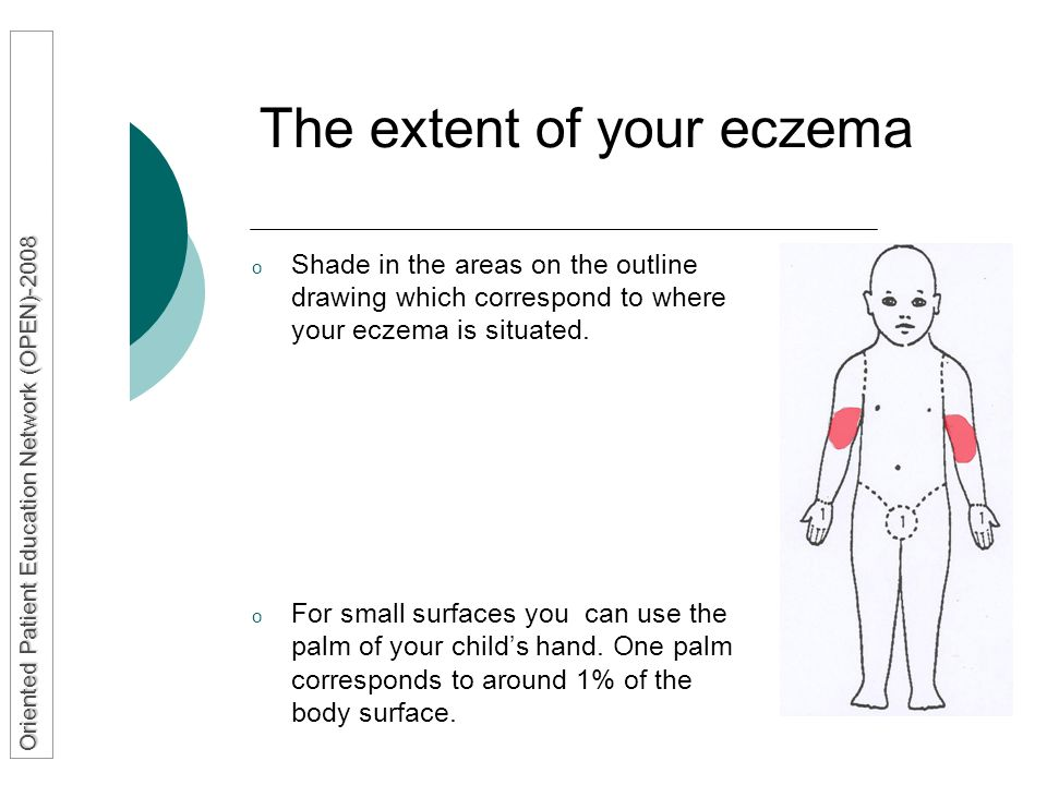 The extent of your eczema o Shade in the areas on the outline drawing which correspond to where your eczema is situated. o For small surfaces you can