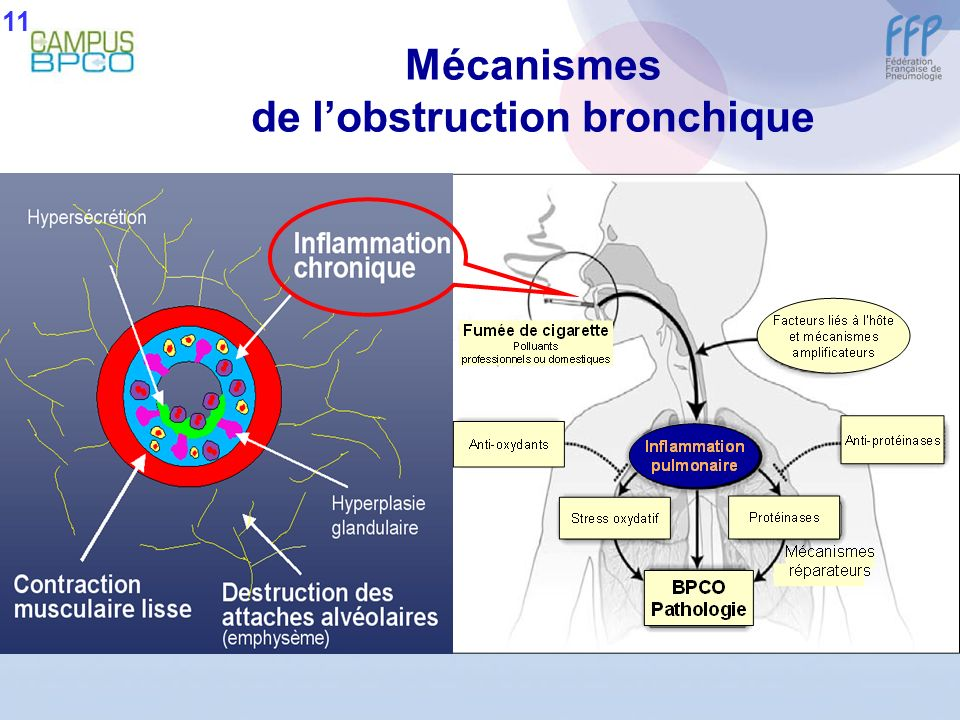 Mécanismes de lobstruction bronchique 11