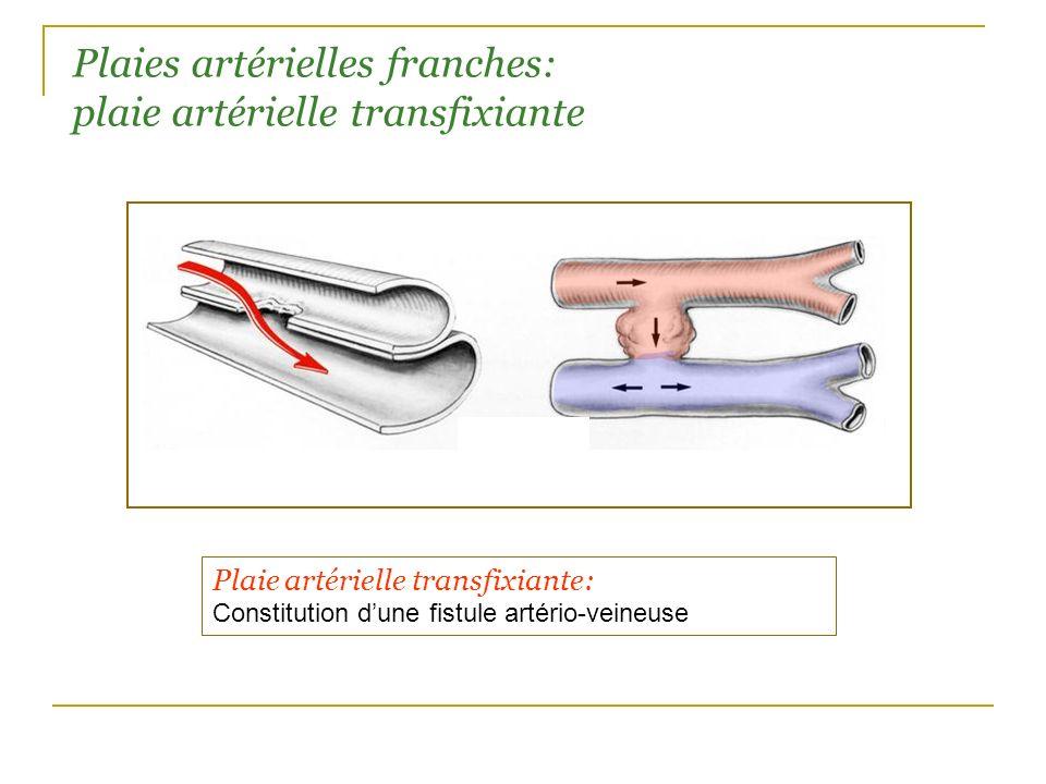 Plaies artérielles franches: plaie artérielle transfixiante Plaie artérielle transfixiante: Constitution dune fistule artério-veineuse