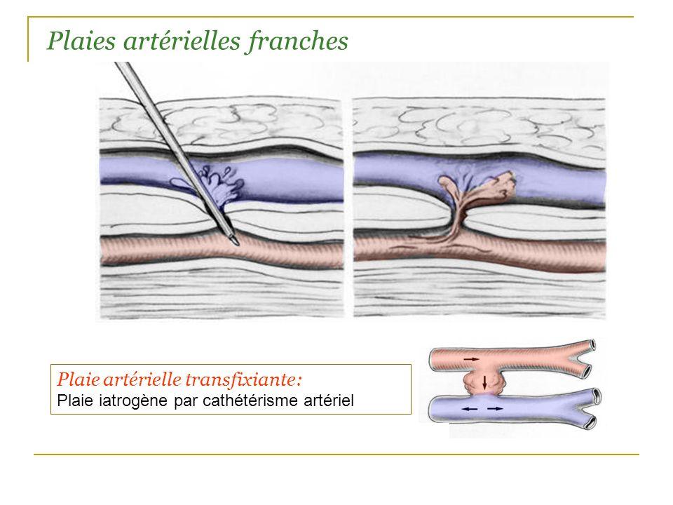 Plaie artérielle transfixiante: Plaie iatrogène par cathétérisme artériel Plaies artérielles franches