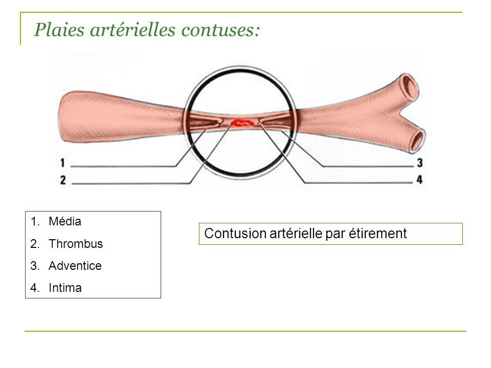 Plaies artérielles contuses: Contusion artérielle par étirement 1.Média 2.Thrombus 3.Adventice 4.Intima
