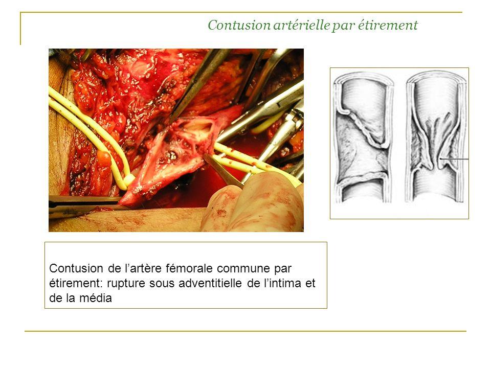 Contusion artérielle par étirement Contusion de lartère fémorale commune par étirement: rupture sous adventitielle de lintima et de la média