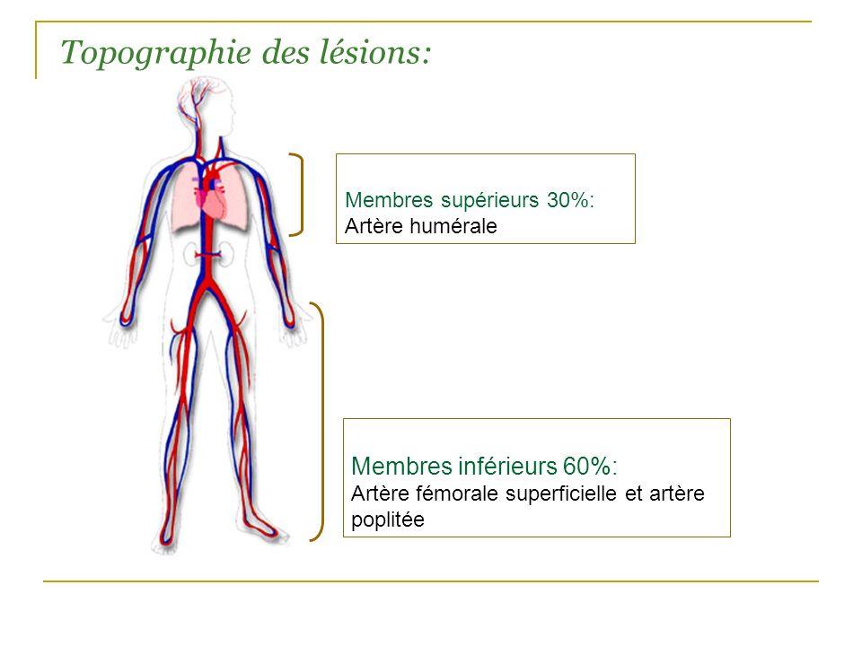 Membres inférieurs 60%: Artère fémorale superficielle et artère poplitée Membres supérieurs 30%: Artère humérale Topographie des lésions: