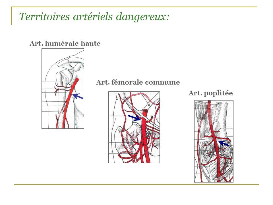 Territoires artériels dangereux: Art. humérale haute Art. fémorale commune Art. poplitée