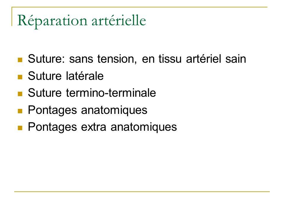 Réparation artérielle Suture: sans tension, en tissu artériel sain Suture latérale Suture termino-terminale Pontages anatomiques Pontages extra anatom