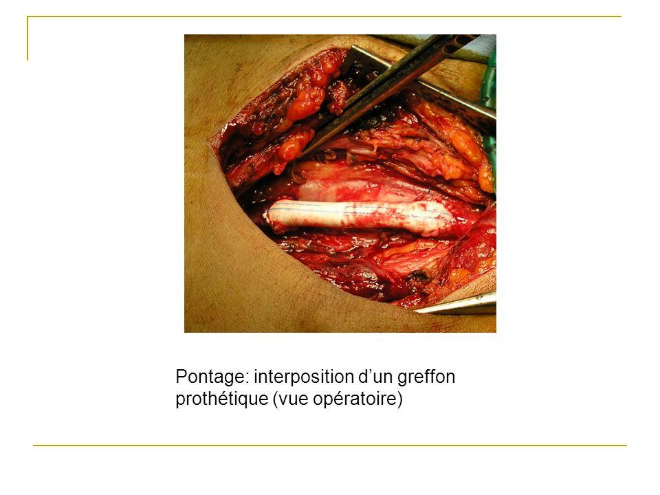 Pontage: interposition dun greffon prothétique (vue opératoire)