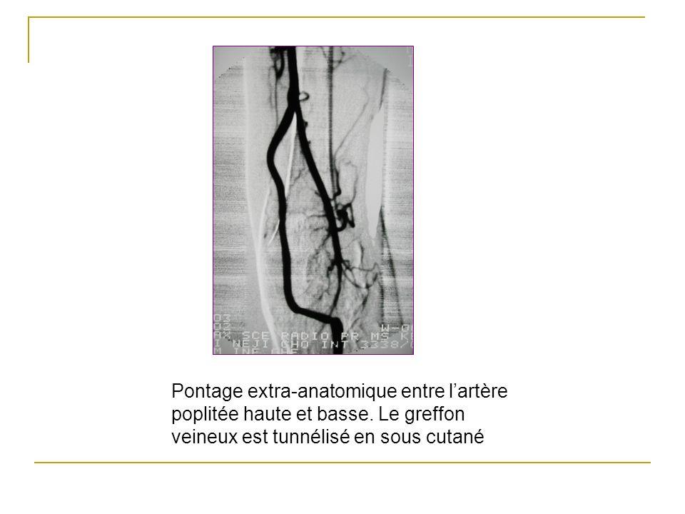 Pontage extra-anatomique entre lartère poplitée haute et basse. Le greffon veineux est tunnélisé en sous cutané