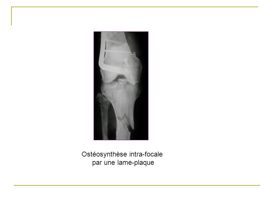 Ostéosynthèse intra-focale par une lame-plaque