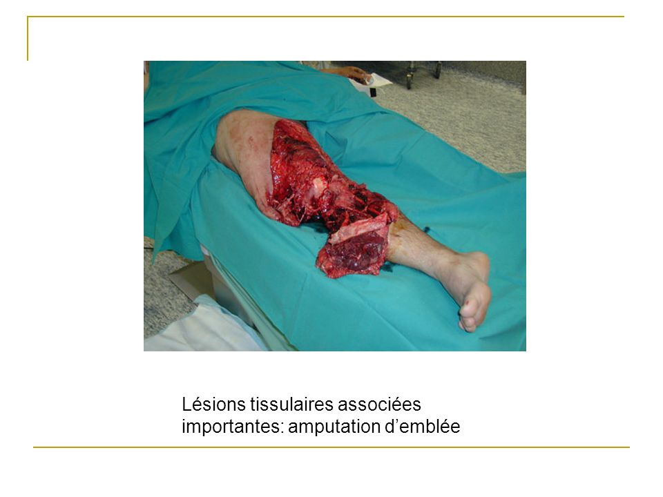 Lésions tissulaires associées importantes: amputation demblée