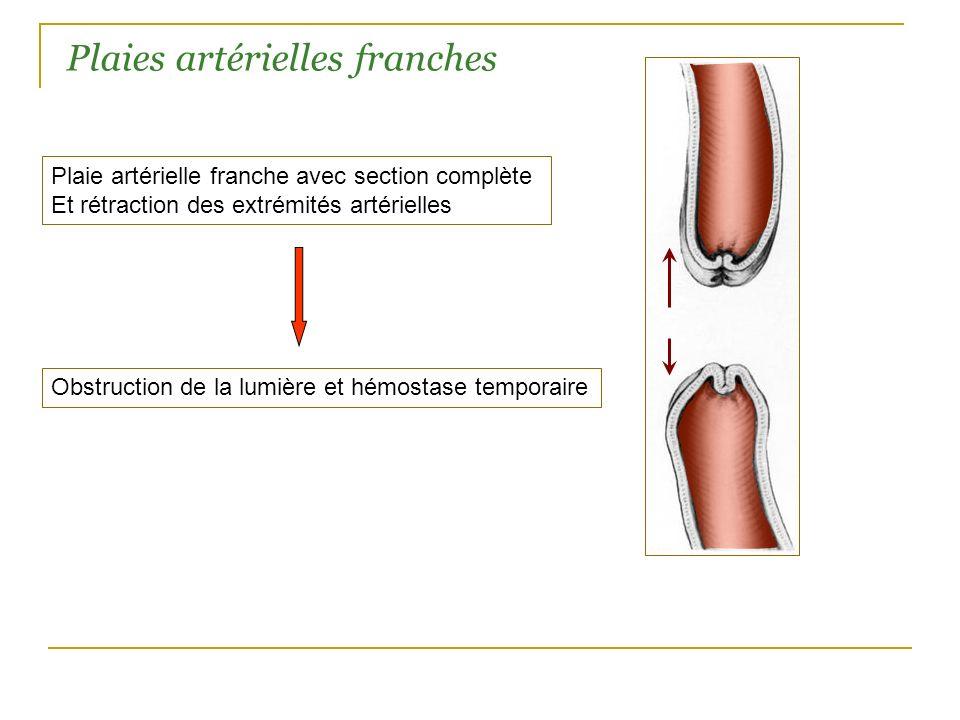 Plaie artérielle franche avec section complète Et rétraction des extrémités artérielles Plaies artérielles franches Obstruction de la lumière et hémos