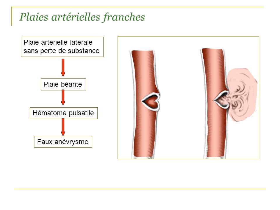 Plaies artérielles franches Plaie artérielle latérale sans perte de substance Plaie béante Hématome pulsatile Faux anévrysme