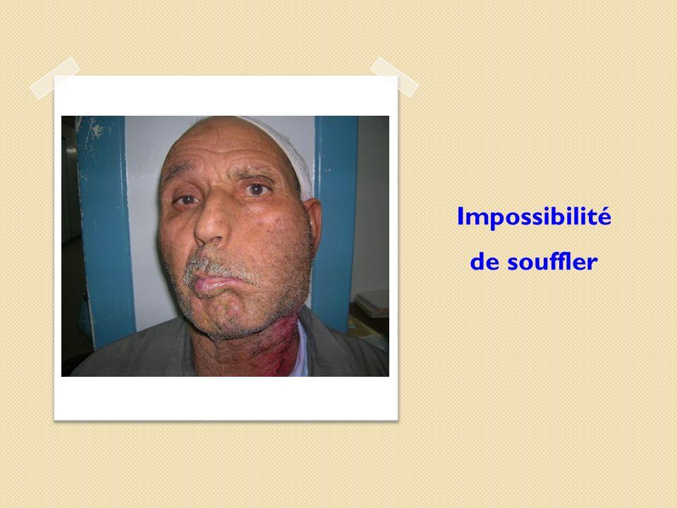 Impossibilité de souffler