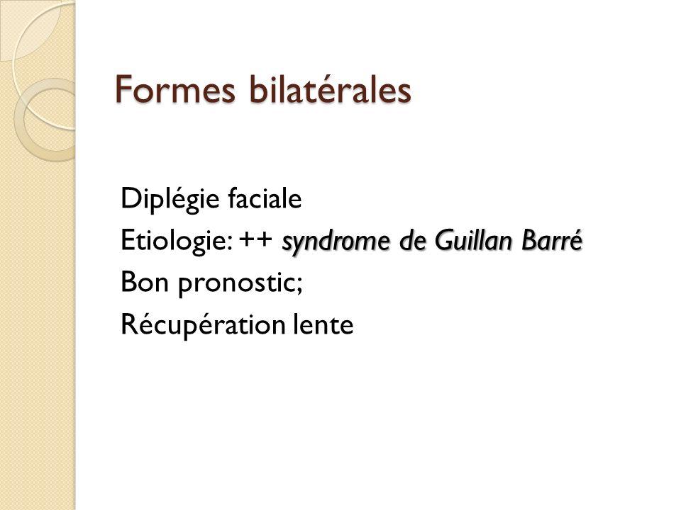 Formes bilatérales Diplégie faciale syndrome de Guillan Barré Etiologie: ++ syndrome de Guillan Barré Bon pronostic; Récupération lente