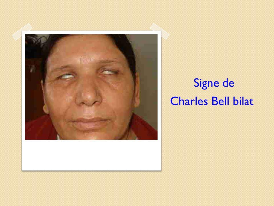 Signe de Charles Bell bilat