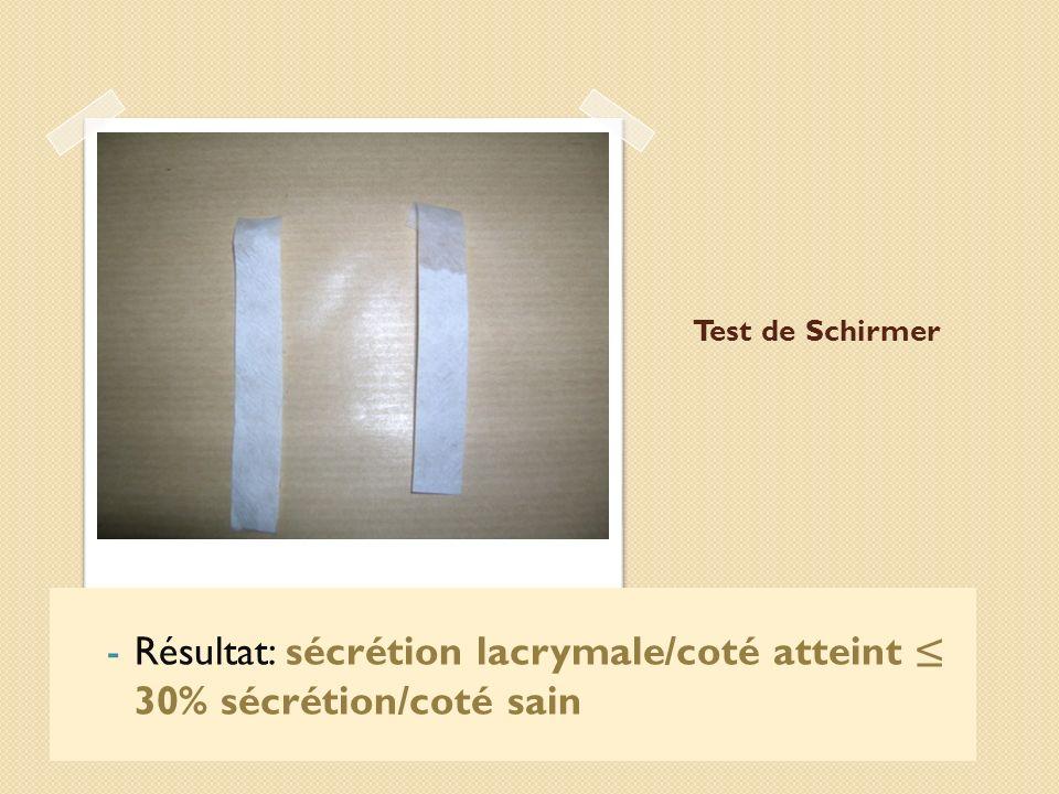 Test de Schirmer -Résultat: sécrétion lacrymale/coté atteint 30% sécrétion/coté sain