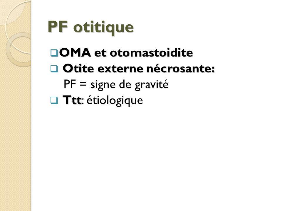 PF otitique OMA et otomastoidite OMA et otomastoidite Otite externe nécrosante: PF = signe de gravité Ttt Ttt: étiologique